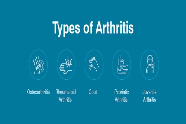 انواع آرتروز